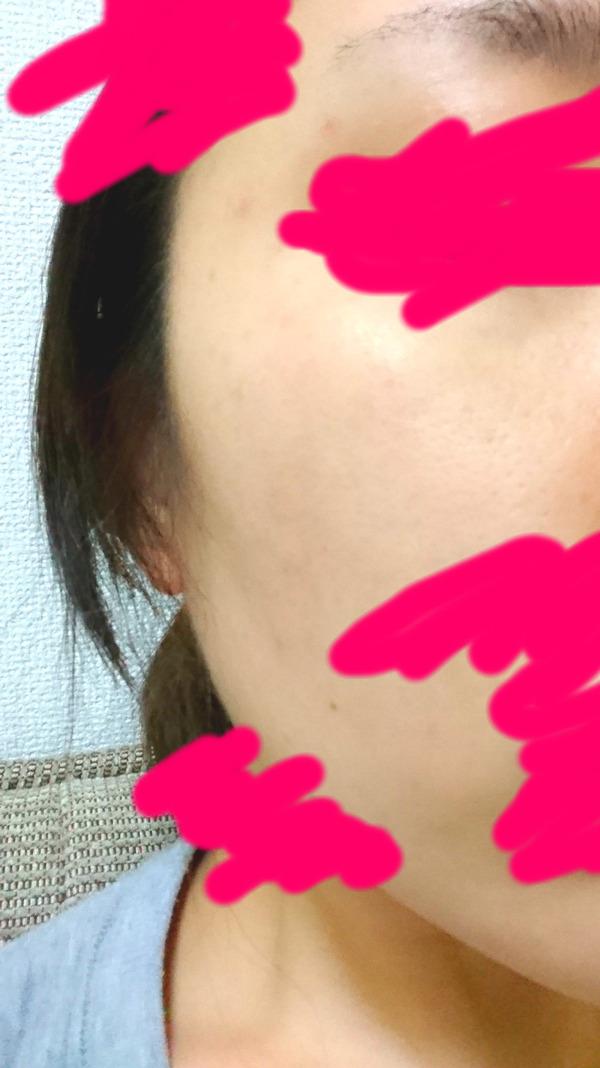 肝斑1ヵ月半