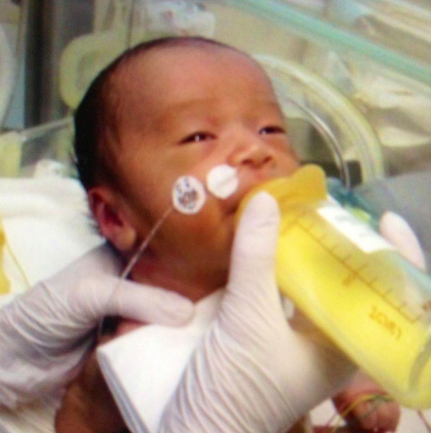 ダウン症 顔 新生児