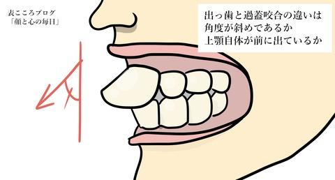表こころブログ_出っ歯の人は失言をする6