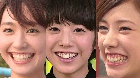 entertainer-gummy-smile09