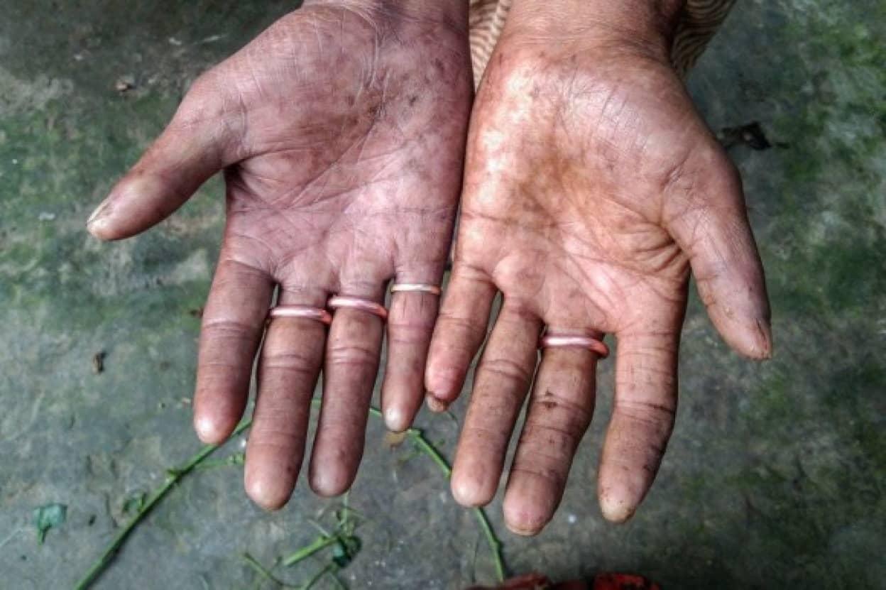 男性だけ指紋のないバングラディシュの家族