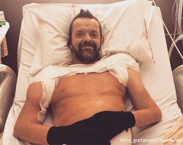 世界初、両腕両肩を移植した男性が驚くべき回復を遂げる