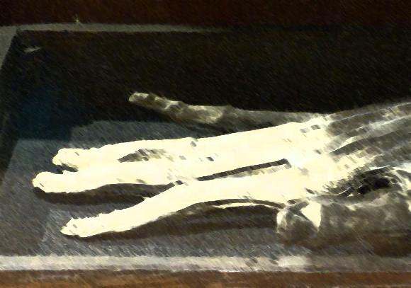 処刑された罪人の右手で作られた魔導具「栄光の手」は実在する。唯一残された標本(イギリス)※閲覧注意