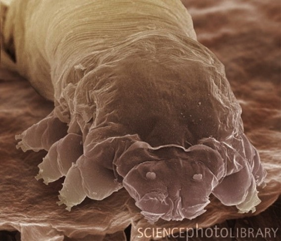 Microscopic Organisms Living In Your Eyelashes 誰の顔にも確実�...