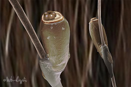 body-lice-eggs-sig