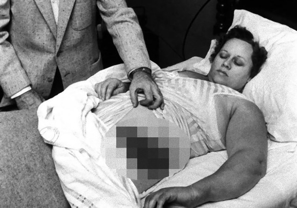 歴史上唯一確実な記録が残っている、隕石にあたって負傷した被害者「アン・ホッジズ」とホッジズ隕石(アメリカ)