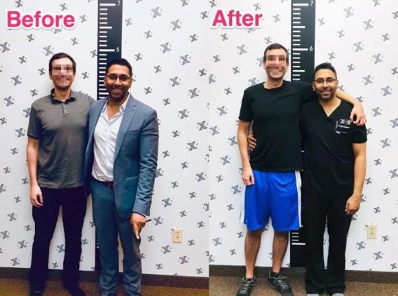 身長を伸ばすために高額な美容整形手術を受けるアメリカの男性たち