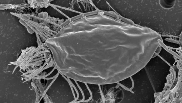 植物界にも動物界にも菌界にも適合しない。これまでの生物進化の道筋から外れた微生物が発見される(カナダ)