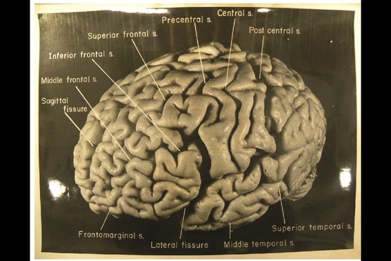 脳 に シワ が ない