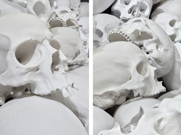 bone5_e