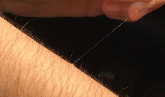 一本だけ長く伸びる体毛の不思議