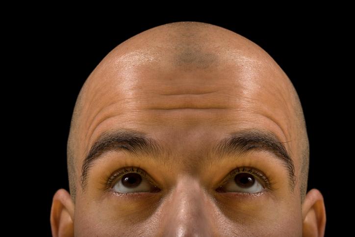 また髪の話をしよう。ニューヨークでハゲを祝うハゲフェスが開催予定