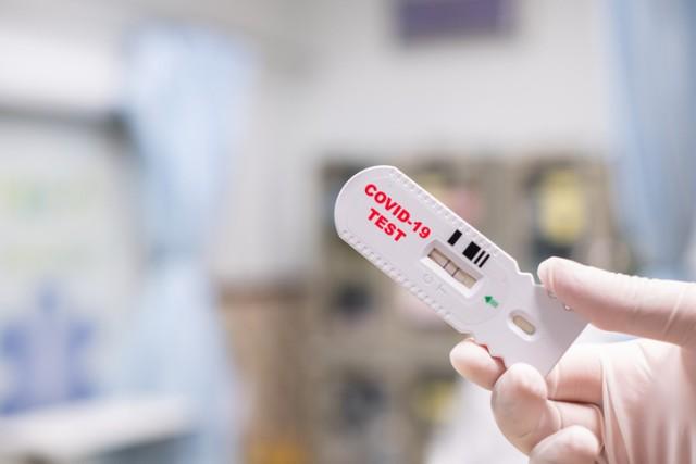 新型コロナウイルスの偽の「陰性証明書」が闇取引されるフランス