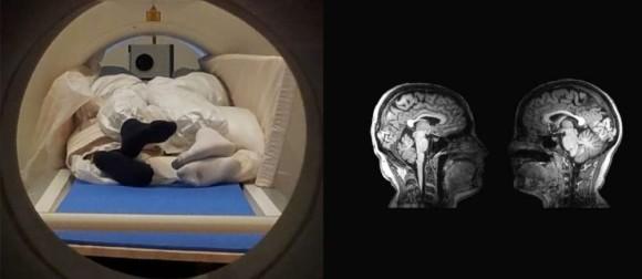 2人の脳をMRI