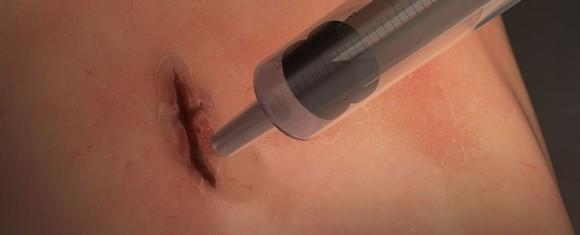 60秒で傷を完全にふさぐ。外科手術用接着剤が開発される(国際研究)