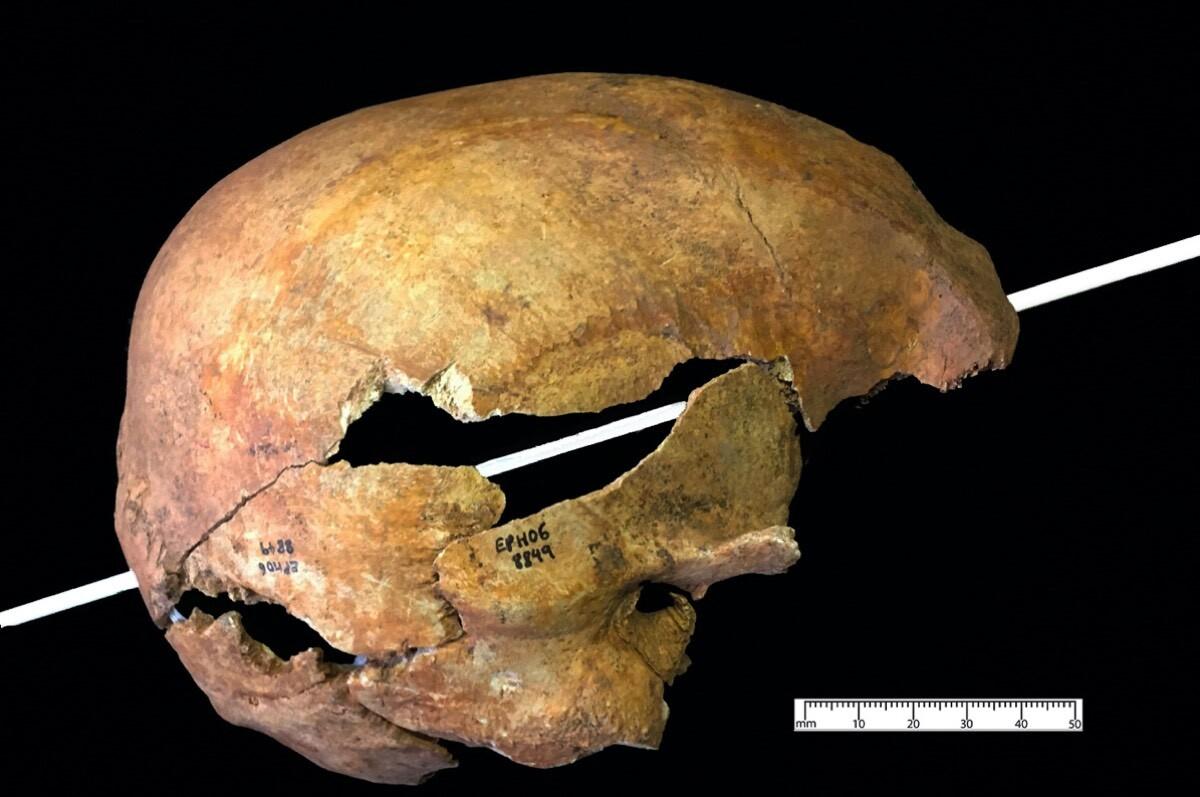 頭蓋骨に刺さった中世の矢