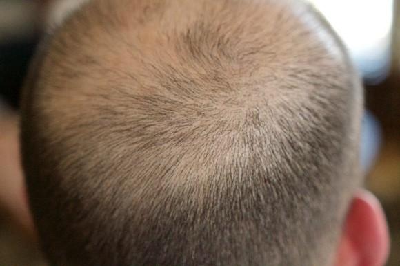 新たに承認された皮膚炎治療薬に思わぬ発毛効果。全頭性脱毛症の少女の髪の毛が劇的に生える(米研究)