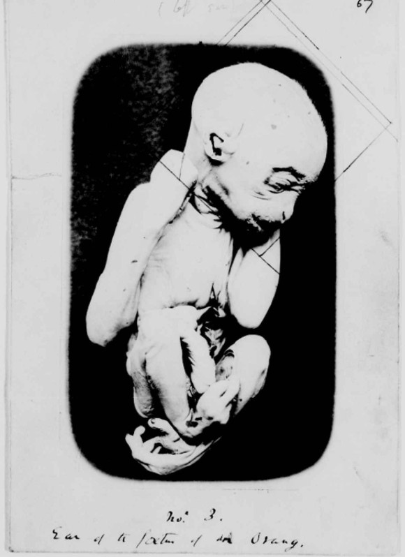 fetus1_e