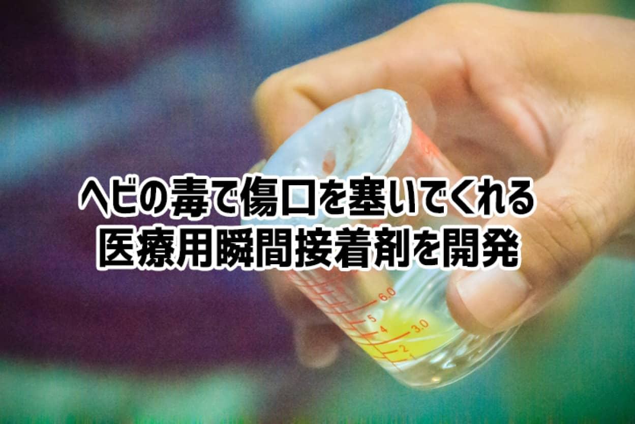 毒蛇の猛毒から傷口を直ぐに塞いでくれる瞬間接着剤が誕生
