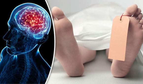 人体ミステリー。死後10分間に渡り、脳活動が記録されるという不可解な事例が発生(カナダ)