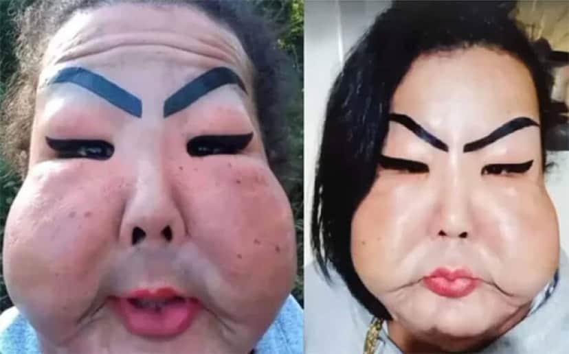 闇クリニックで工業用シリコンを顔面に注入された女性、顔が風船のように膨れ上がる
