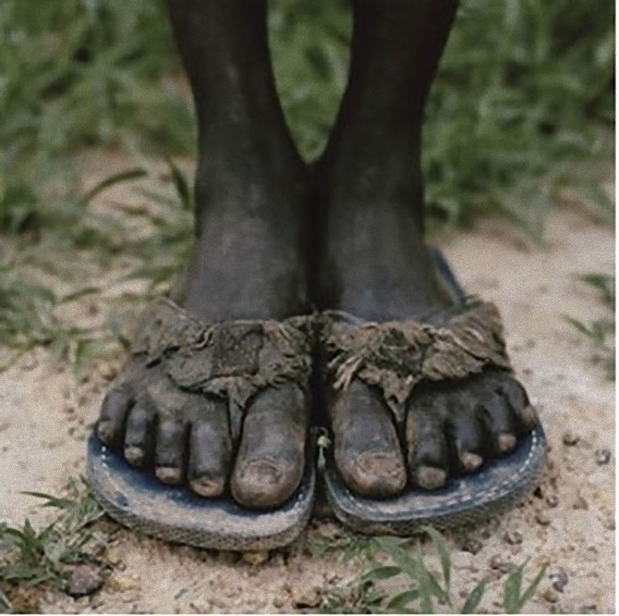foot_02_e