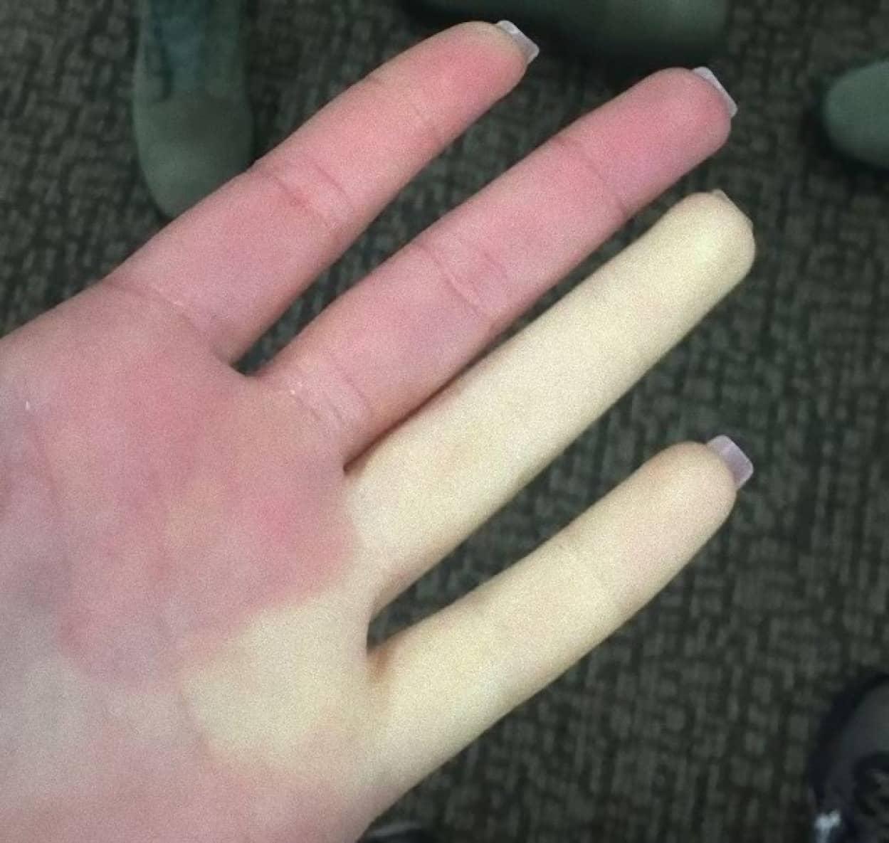 指が真っ白くなるレイノー症候群