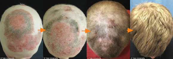 禿治療に革命が!?関節炎の治療薬投与によりたった8カ月でふっさふさに(米研究)