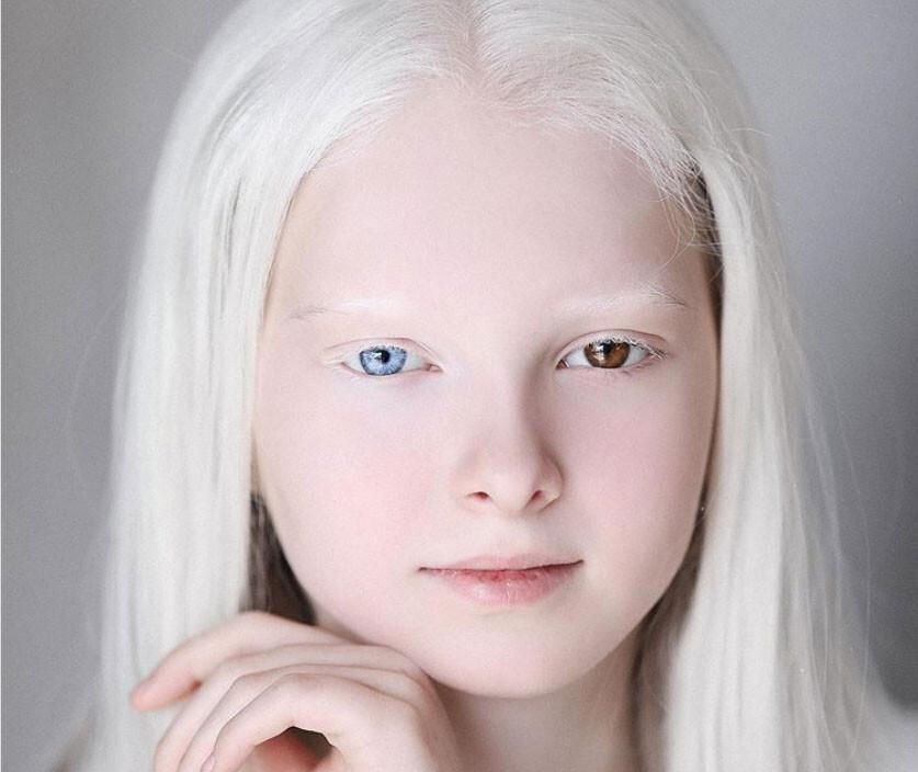 オッドアイとアルビノ、2つのスペシャルを持って生まれたチェチェンの美しい少女(ロシア)
