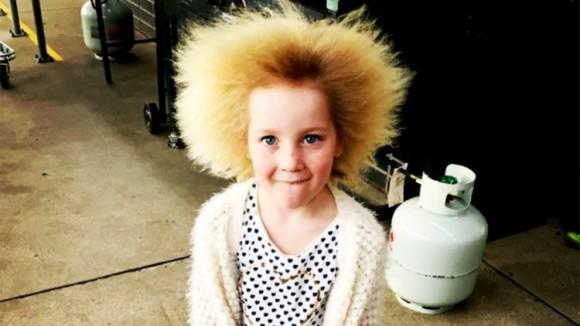 髪の毛が逆立ったまま戻らない。常に超サイヤ人状態の髪質をもつ7歳少女