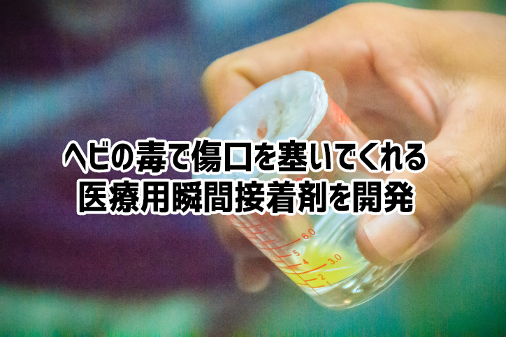 ヘビの猛毒から傷口をすぐにふさいでくれる医療用の瞬間接着剤が開発される