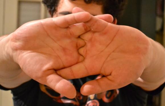 指をポキポキ鳴らすと関節炎になるって本当?あの噂を検証する。
