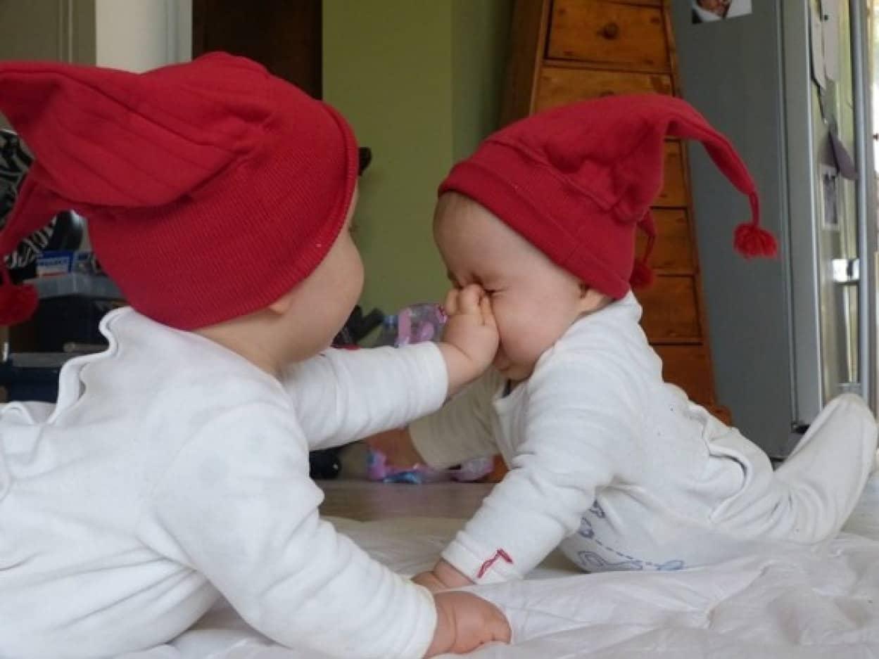 双子の赤ちゃんに医療用のタトゥーを入れた母親