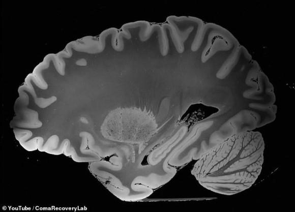 これまでで最も精細な人間の脳のスキャン映像。MRIで100時間かけて撮影