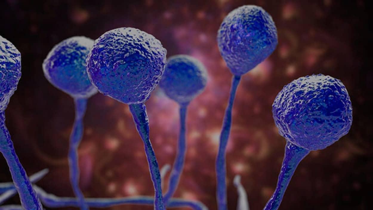 インドでコロナ感染者の真菌感染症が増加