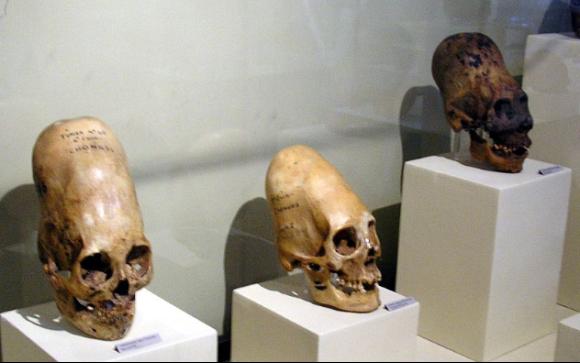 究極の美を求めて?あるいは何らかの目的が?頭蓋骨を変形させた「人工頭蓋変形」10の例