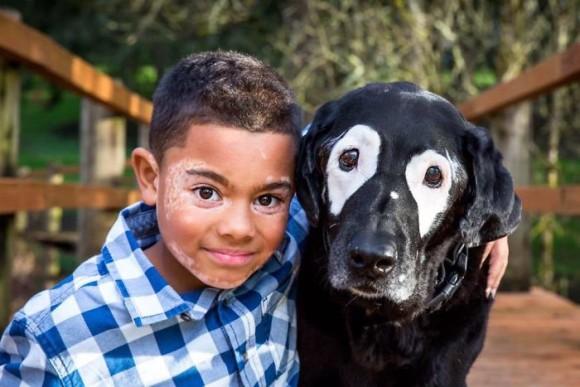 白斑の少年が白斑の犬と出会った。みんなと違う自分を好きになることができた(アメリカ)
