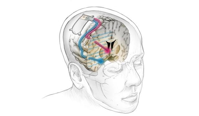 脳に電気刺激を与えるデバイスを埋め込み、抗うつ剤の効かないのうつ病を治療することに成功