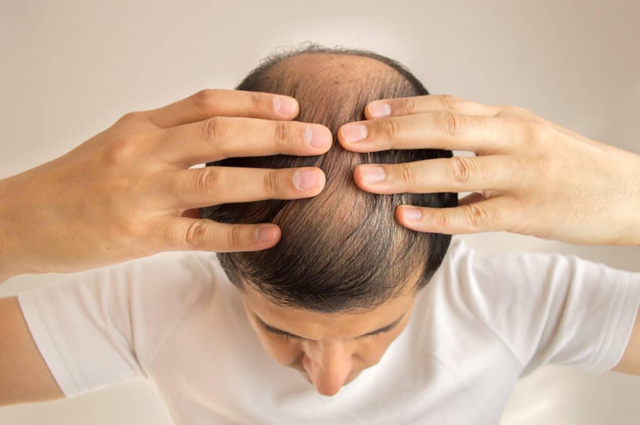 発毛に有望なマイクロRNAを特定