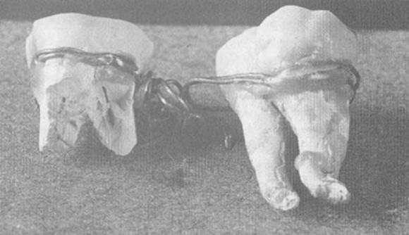 古代から中世にかけて発達していった、ちょっと怖い歯科治療に関する10の歴史
