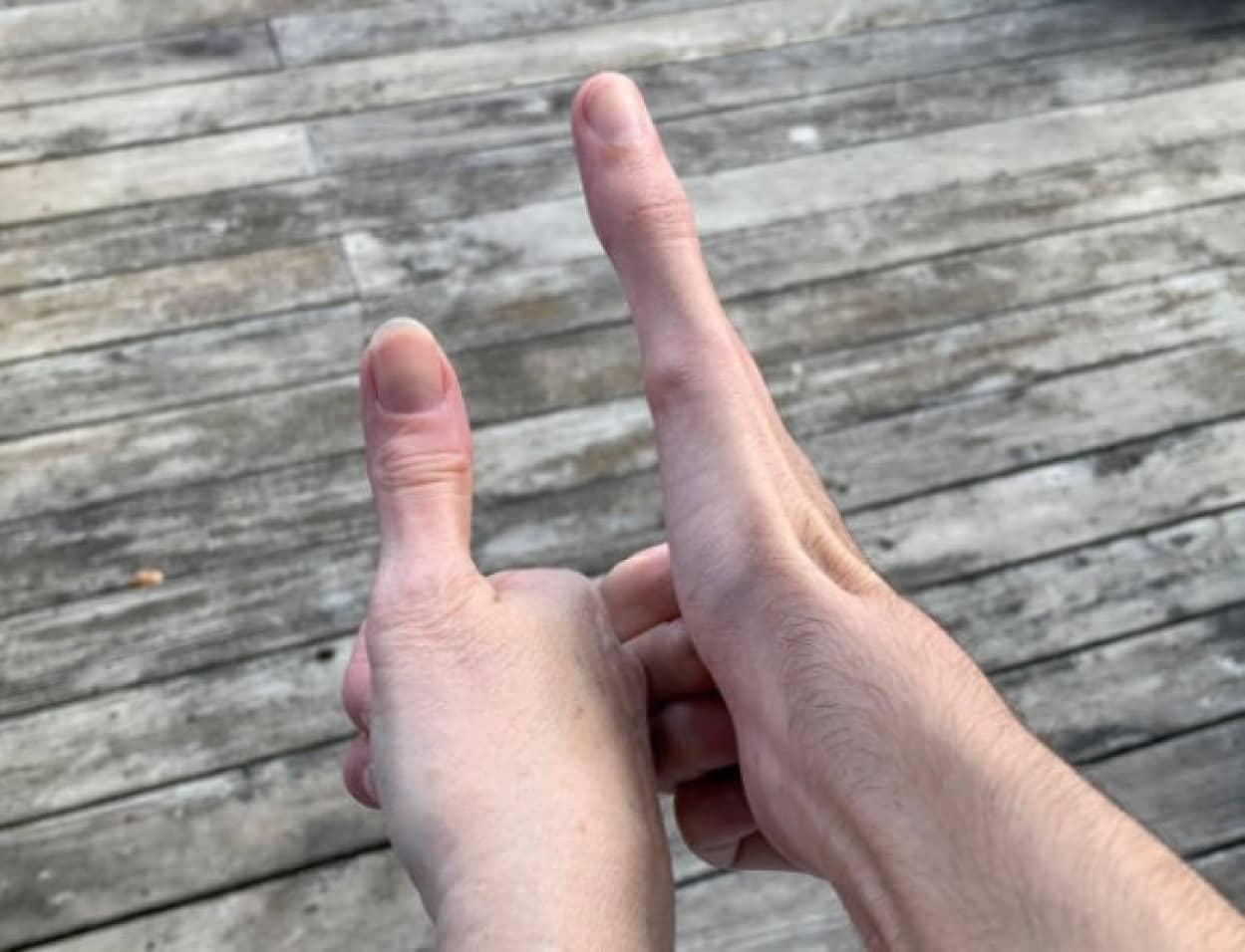finger cover_e