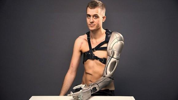 電車事故で片手を失ったゲーマー男性、コナミ社が開発したメタルギアソリッドのスネークをモチーフにした多機能バイオニックアームである意味サイボーグ化