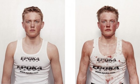 nicolai-howalt-boxers-before-and-after-06_e