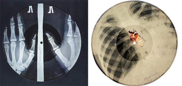 ソ連時代、海賊版のレコードはレントゲン写真のフィルムに焼かれていた