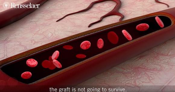 血管を備えた「生きた皮膚」を3Dプリンターで作成することに成功(米研究)