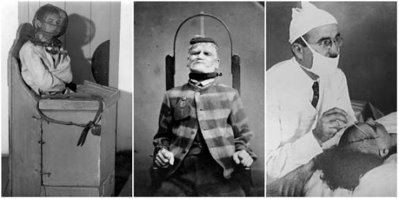 本当にあった昔の精神病院の治療器具と治療風景(1800年代後半~1900年代半ば)