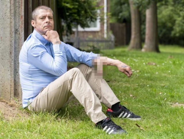 大切なイチモツを失った男性、腕に人工イチモツを生やして4年、移植手術を待ち続ける(イギリス)