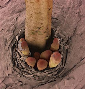 eyelash-mites1