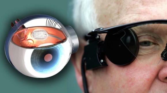 世界初のバイオニックアイで視力を失った人に再び光が