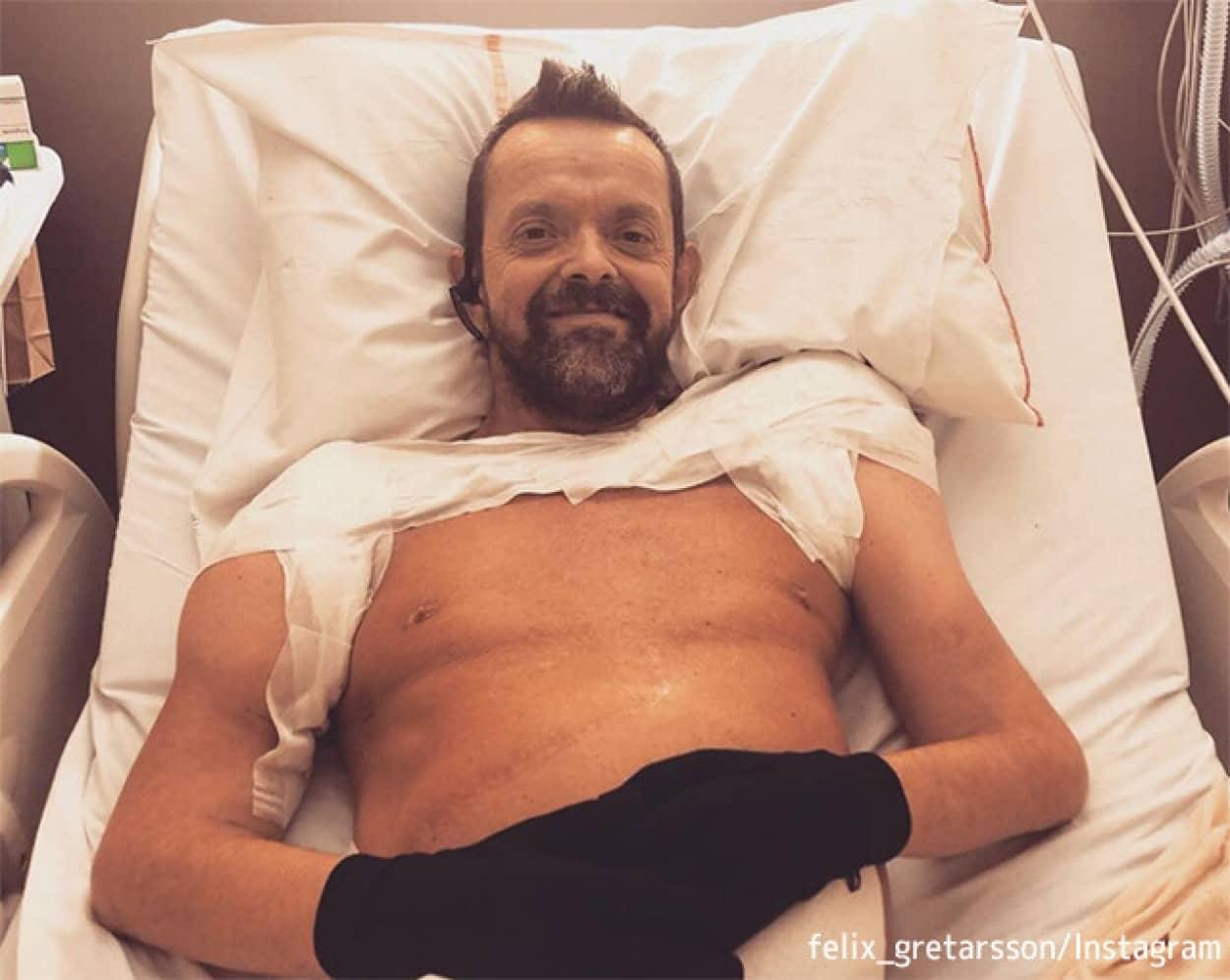世界初、両腕両肩を移植した男性の驚くべき回復